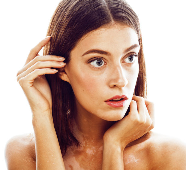 How Histamine Affects Skin Pigmentation
